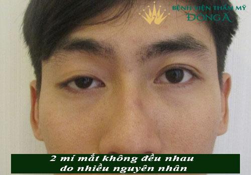 Tại sao 2 mí mắt không đều & 5 Cách làm 2 mí mắt đều nhau hiệu quả 2