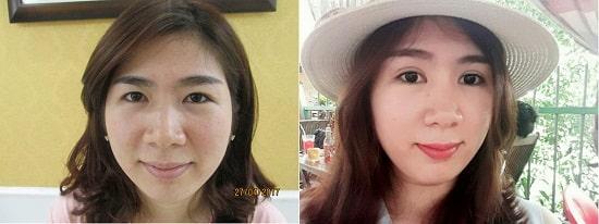 Hình ảnh cắt mí mắt sau 1 tuần, 1 tháng, 2 tháng sẽ thay đổi như thế nào? 5