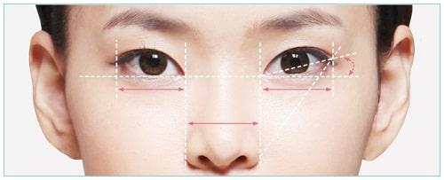Công nghệ cắt mí Eye Lift độc quyền tại Đông Á cho đôi mắt trẻ đẹp tự nhiên