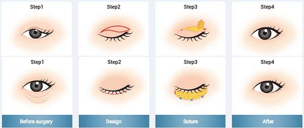 Lấy mỡ mí mắt ở đâu tốt HIỆU QUẢ - UY TÍN SỐ 1 cho đôi mắt tươi trẻ 1