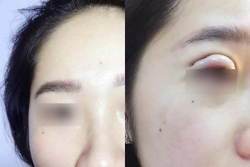 Bấm mí mắt có vĩnh viễn không, có đau không & có an toàn không? 5