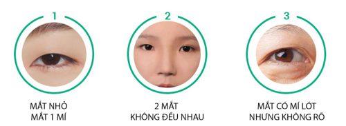 Bấm mí công nghệ mới - Khắc phục mọi khuyết điểm của đôi mắt 5