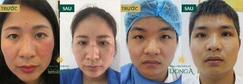 Bấm mí mắt - Công nghệ an toàn cho đôi mắt đạt vẻ đẹp hoàn mỹ 5