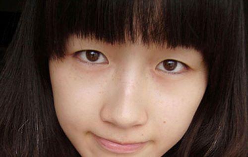 Bấm mí mắt - Công nghệ an toàn cho đôi mắt đạt vẻ đẹp hoàn mỹ 2