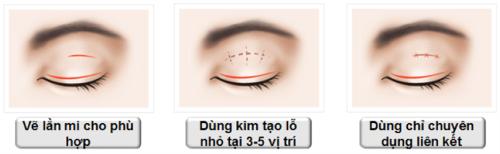Bấm mí mắt - Công nghệ an toàn cho đôi mắt đạt vẻ đẹp hoàn mỹ 3