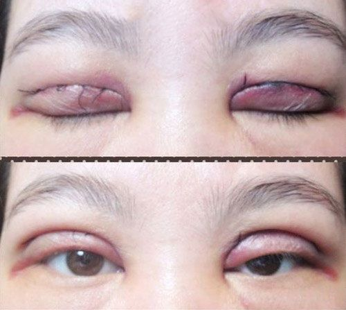 Bấm mí mắt có hại không? Cần cân nhắc gì trước khi bấm mí mắt? 3