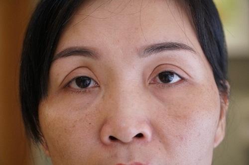 6 biến chứng sau cắt mí có thể gặp phải nếu Không biết cách phòng tránh 7