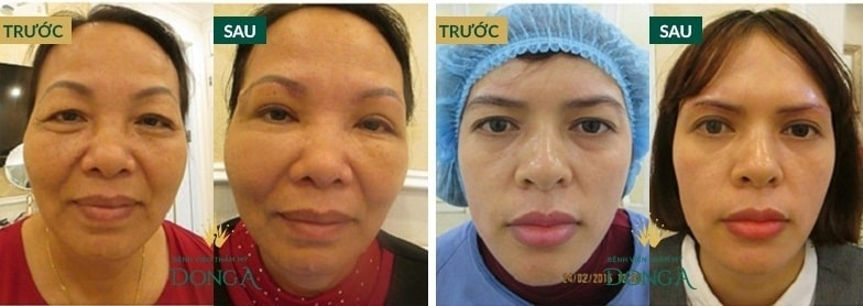 Bọng mắt là gì? Cách chữa trị bọng mỡ mắt Hiệu Quả - An Toàn sau 45p 7