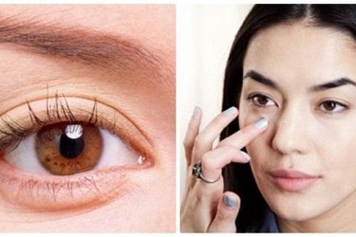 Bọng mắt là gì? Cách chữa trị bọng mỡ mắt Hiệu Quả - An Toàn sau 45p 1