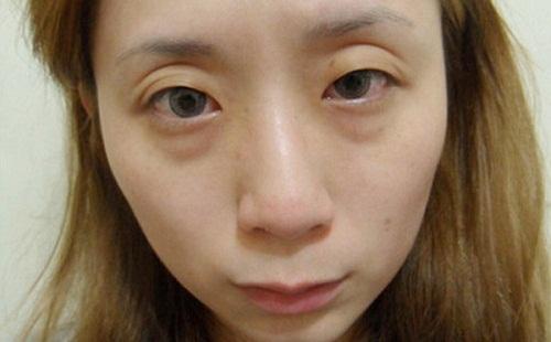Bọng mắt là gì? Cách chữa trị bọng mắt Hiệu Quả nhất sau 45p 2
