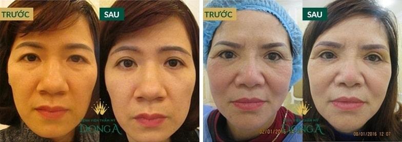 Bọng mắt là gì? Cách chữa trị bọng mỡ mắt hiệu quả nhất sau 45p 8