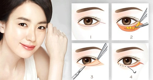 Bọng mắt là gì? Cách chữa trị bọng mắt Hiệu Quả nhất sau 45p 4