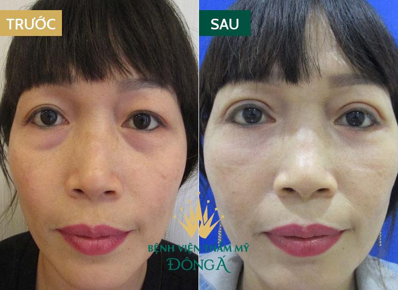Bọng mắt bị nhăn - Nguyên nhân & cách trị vết nhăn ở bọng mắt hiệu quả 6