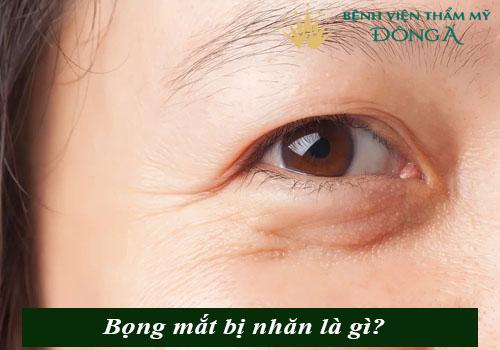 Bọng mắt bị nhăn - Nguyên nhân & cách trị vết nhăn ở bọng mắt hiệu quả 1