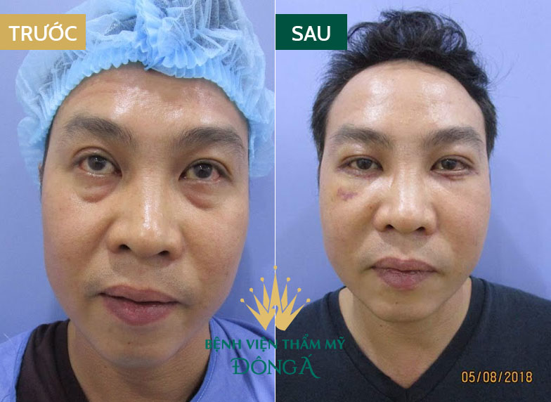 Bọng mắt bị nhăn - Nguyên nhân & cách trị vết nhăn ở bọng mắt hiệu quả 7