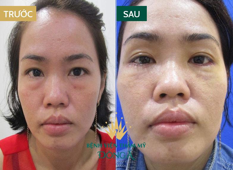 Bọng mắt bị nhăn - Nguyên nhân & cách trị vết nhăn ở bọng mắt hiệu quả 8