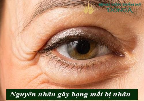 Bọng mắt bị nhăn - Nguyên nhân & cách trị vết nhăn ở bọng mắt hiệu quả 2