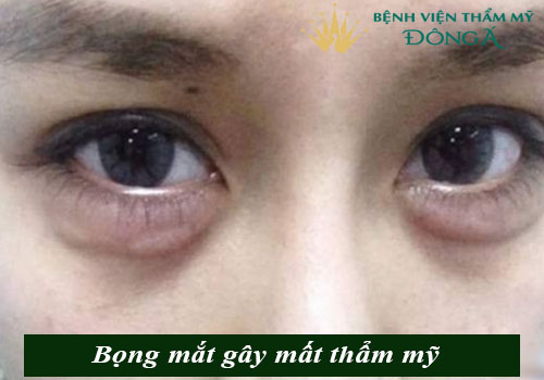 Bọng mắt bị nhăn - Nguyên nhân & cách trị vết nhăn ở bọng mắt hiệu quả 3
