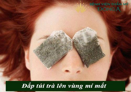 Bọng mắt bị nhăn - Nguyên nhân & cách trị vết nhăn ở bọng mắt hiệu quả 4