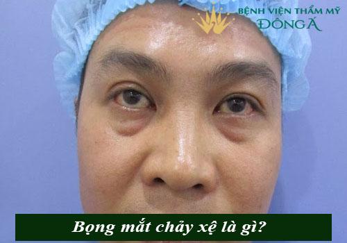 Bọng mắt chảy xệ - Nguyên nhân & Cách chữa Hiệu quả, An toàn 1