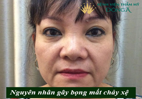 Bọng mắt chảy xệ - Nguyên nhân & Cách chữa Hiệu quả, An toàn 2