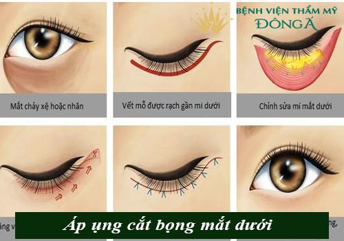 Bọng mắt chảy xệ - Nguyên nhân & Cách chữa Hiệu quả, An toàn 4