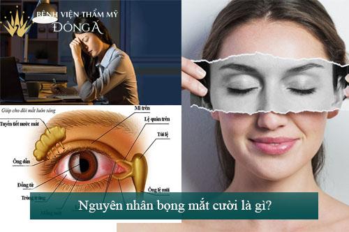Bọng mắt cười là gì? Phẫu thuật bọng mắt cười giá bao nhiêu? 2