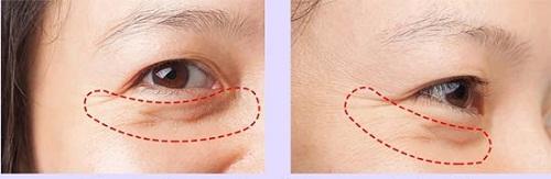 Phẫu thuật cắt bọng mắt dưới Hiệu Quả & An Toàn cho đôi mắt TRẺ ĐẸP 2