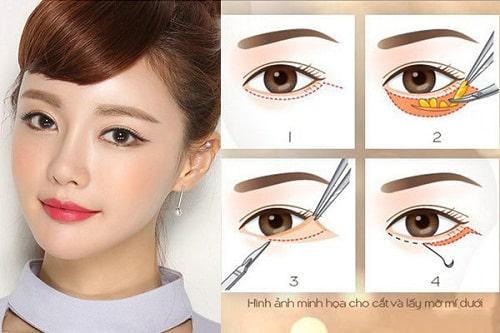 """""""Tường tận"""" quy trình cắt bọng mỡ mắt dưới hiệu quả cho đôi mắt tươi trẻ 3"""