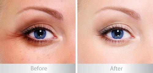 """""""Tường tận"""" quy trình cắt bọng mỡ mắt dưới hiệu quả cho đôi mắt tươi trẻ 5"""