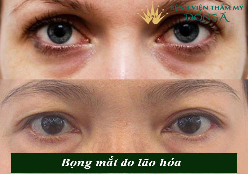 Bọng mắt quầng thâm là gì? Cách trị bọng mắt và quầng thâm hiệu quả 2