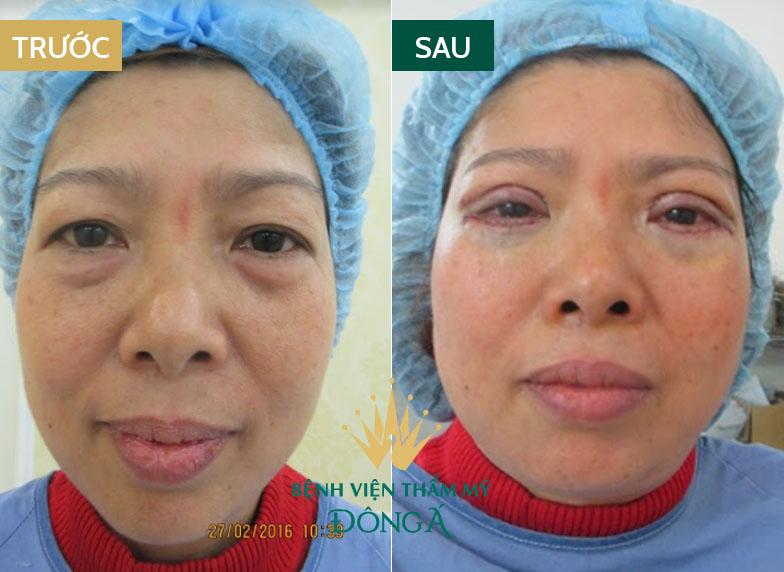 Bọng mắt bị nhăn - Nguyên nhân & cách trị vết nhăn ở bọng mắt hiệu quả 9