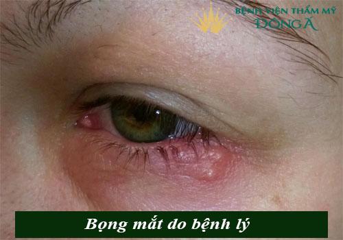 Bọng mắt quầng thâm là gì? Cách trị bọng mắt và quầng thâm hiệu quả 4