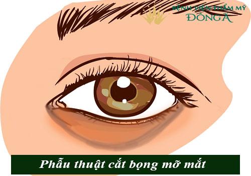 Bọng mắt quầng thâm là gì? Cách trị bọng mắt và quầng thâm hiệu quả 6