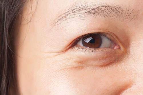 Bọng mắt dưới bị sưng đỏ - Nguyên nhân & cách khắc phục hiệu quả nhất 13