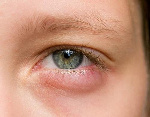 Bọng mắt dưới bị sưng đỏ - Nguyên nhân & cách khắc phục hiệu quả nhất 3