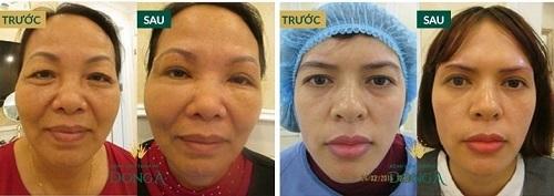 Bọng mắt dưới bị sưng đỏ - Nguyên nhân & cách khắc phục hiệu quả nhất 8