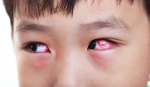 Bọng mắt dưới bị sưng đỏ - Nguyên nhân & cách khắc phục hiệu quả nhất 4