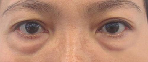 Bọng mỡ mắt là gì, đẹp hay xấu? HỆ LỤY gây ra khi chưa khắc phục 4