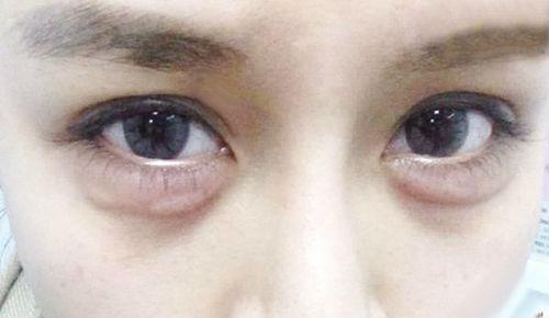 Bọng mỡ mắt là gì, đẹp hay xấu? HỆ LỤY gây ra khi chưa khắc phục 3