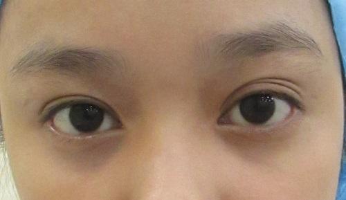 Các loại mí mắt đặc trưng của người Việt - Đâu là mí mắt Chuẩn Đẹp 4