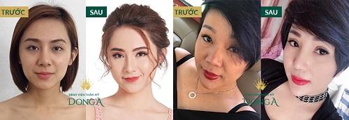 Các loại mí mắt đặc trưng của người Việt - Đâu là mí mắt Chuẩn Đẹp 10