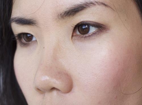 Các loại mí mắt đặc trưng của người Việt - Đâu là mí mắt Chuẩn Đẹp 3