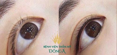 Cách chăm sóc mí mắt sau khi phun chuẩn khoa học cho mắt nhanh đẹp 1