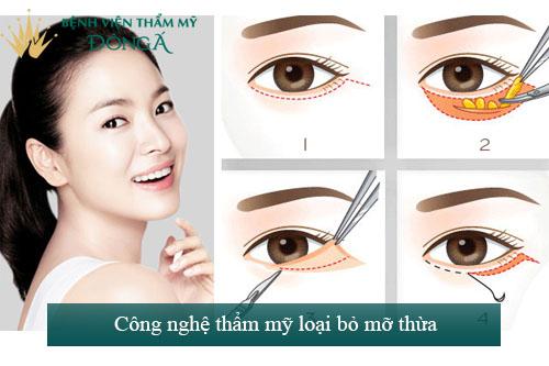 9 Cách chữa bọng mắt dưới Đơn Giản - Hiệu quả tại nhà 10