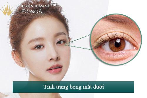 9 Cách chữa bọng mắt dưới Đơn Giản - Hiệu quả tại nhà 1