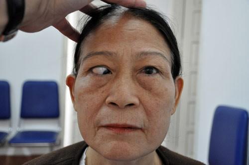 Mắt lé là gì? Nguyên nhân & Cách chữa trị mắt lé hiệu quả nhất chỉ 45p 1
