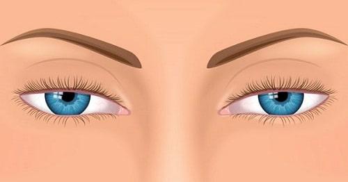 7 Cách chữa trị sụp mí mắt HIỆU QUẢ - NHANH CHÓNG - AN TOÀN 1