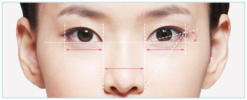 Đôi mắt của họ đã thay đổi như thế nào trước và sau khi cắt mí Eye Lift