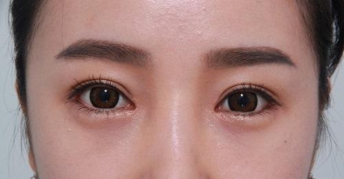 Cách nhận biết mắt 1 mí 2 mí đơn giản để có mắt ĐẸP CHUẨN 3
